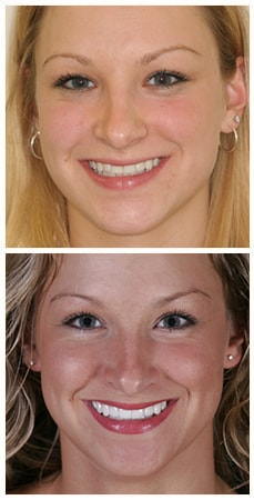 A photo of Jen a patient of Dr. Nosti who underwent smile design treatment