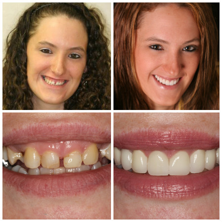 Photo of Mary a New York Dental Patient who received gum contouring