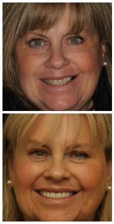 Photo of a real patient who underwent smile design treatment in New York