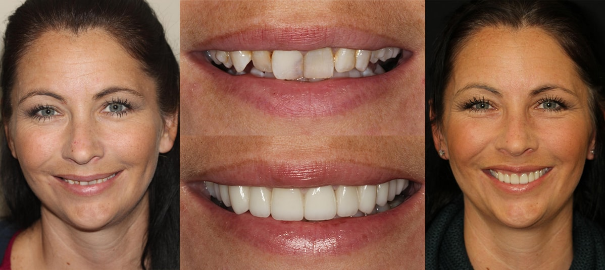 Cosmetic Dentistry Center NYC - Dr. Pia Lieb