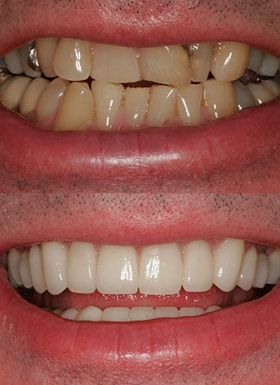 An up close view of dental work done by NYC smile design.