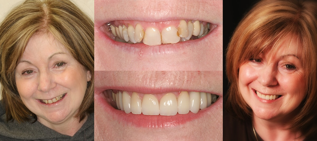 Cosmetic Dentist NYC, New York | Craft the Smile of a ...