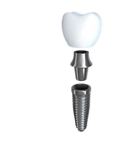 Anatomy of the three parts of a dental implant: post, abutment, and crown.
