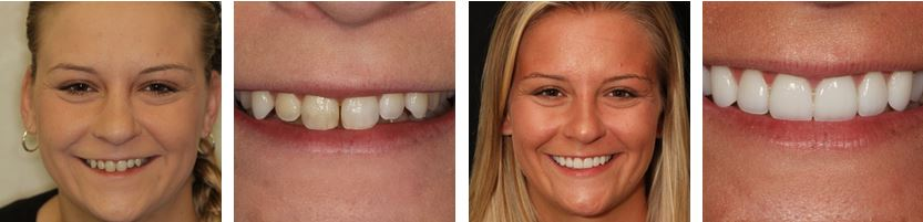 Dentist in New York City Smile Gallery Case
