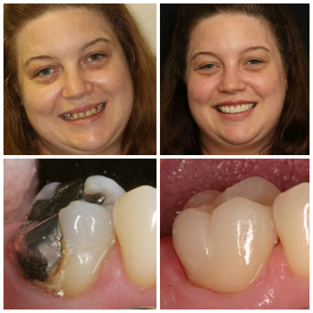 Before and after photo of crown placement
