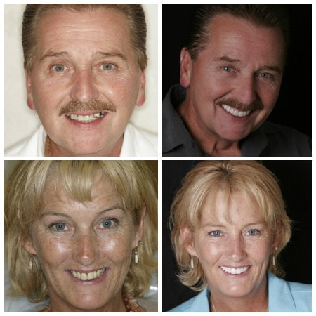 Photo of real patients who have received dental implants from Dr. John Nosti in New York