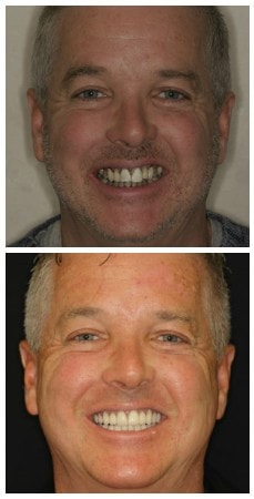 Photo of before and after full mouth rehabilitation
