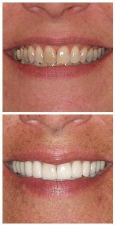 A closeup photo of a full mouth rehabilitation