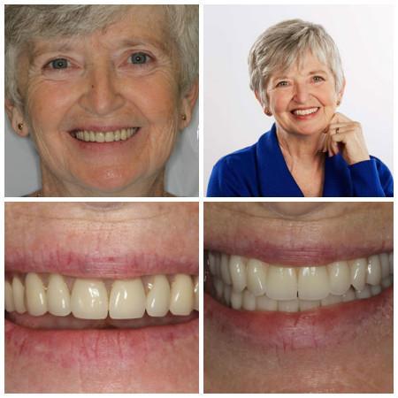 Photo collage of a real patient who received dentures from Dr. John Nosti