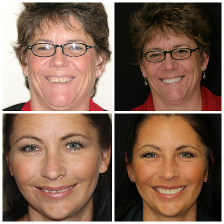 Photo of real patients with Porcelain Veneers from Dr. Nosti