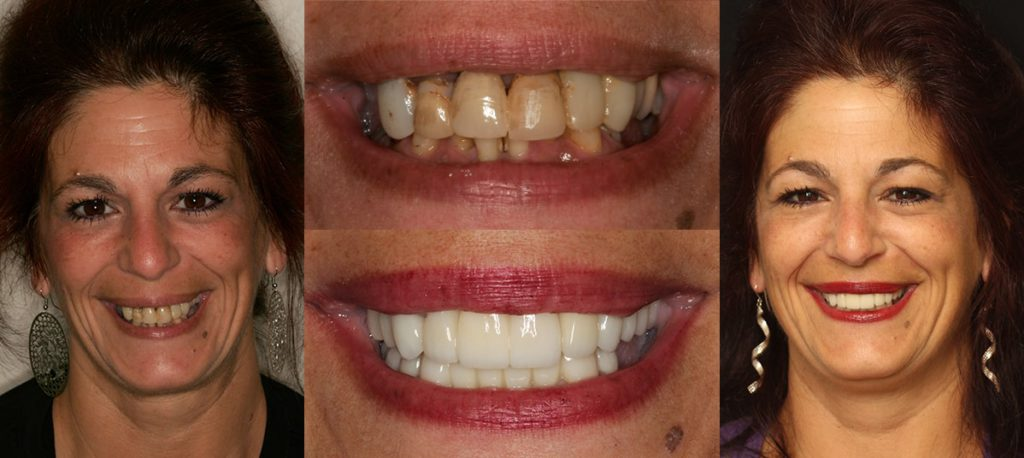 Sandy's before and after of Mays Landing, NJ smile design
