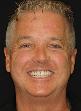 See the difference in a smile created by NYC smile design.