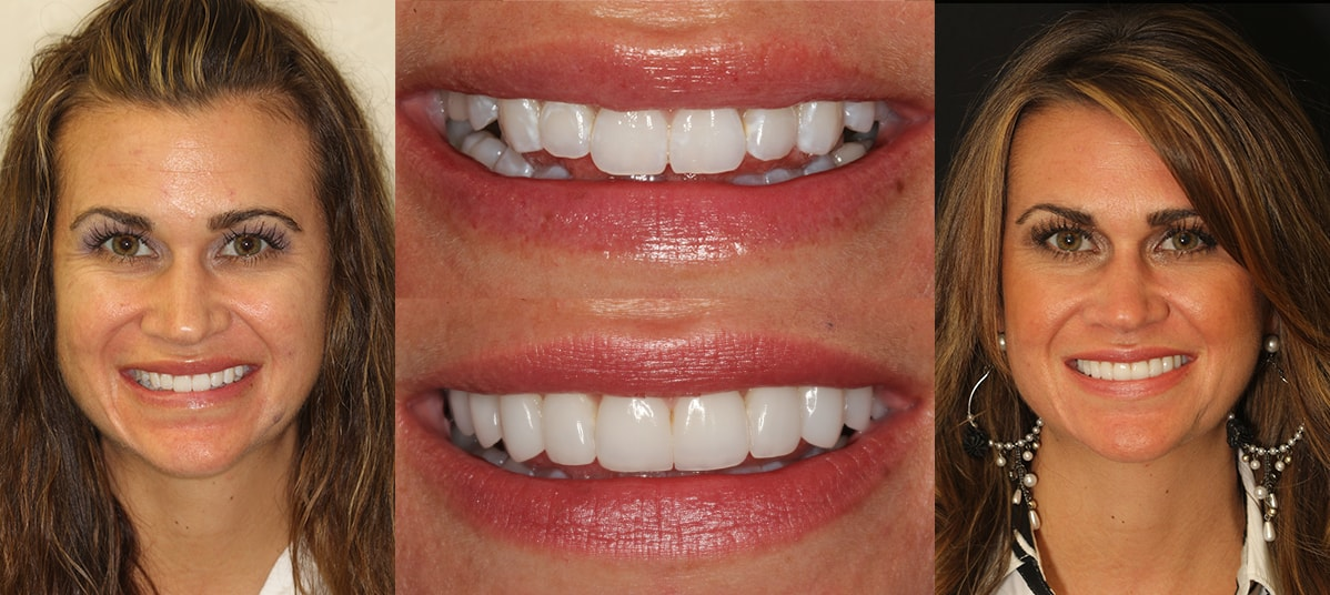 New Jersey Cosmetic Dentist | Smile Gallery | Dr  John Nosti