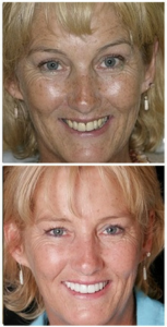 Before and after dental implant case