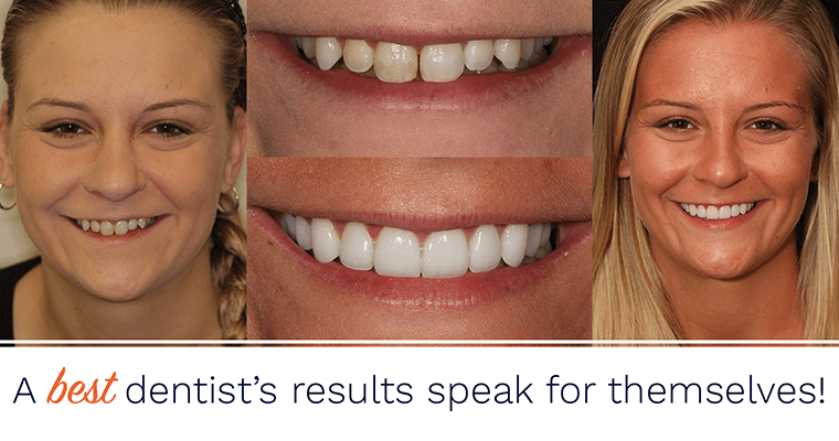 A best dentist's results speak for themselves!